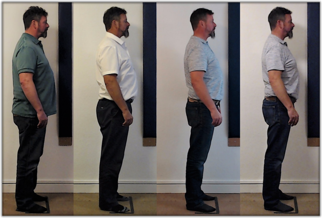 Posture correction after 12 sessions